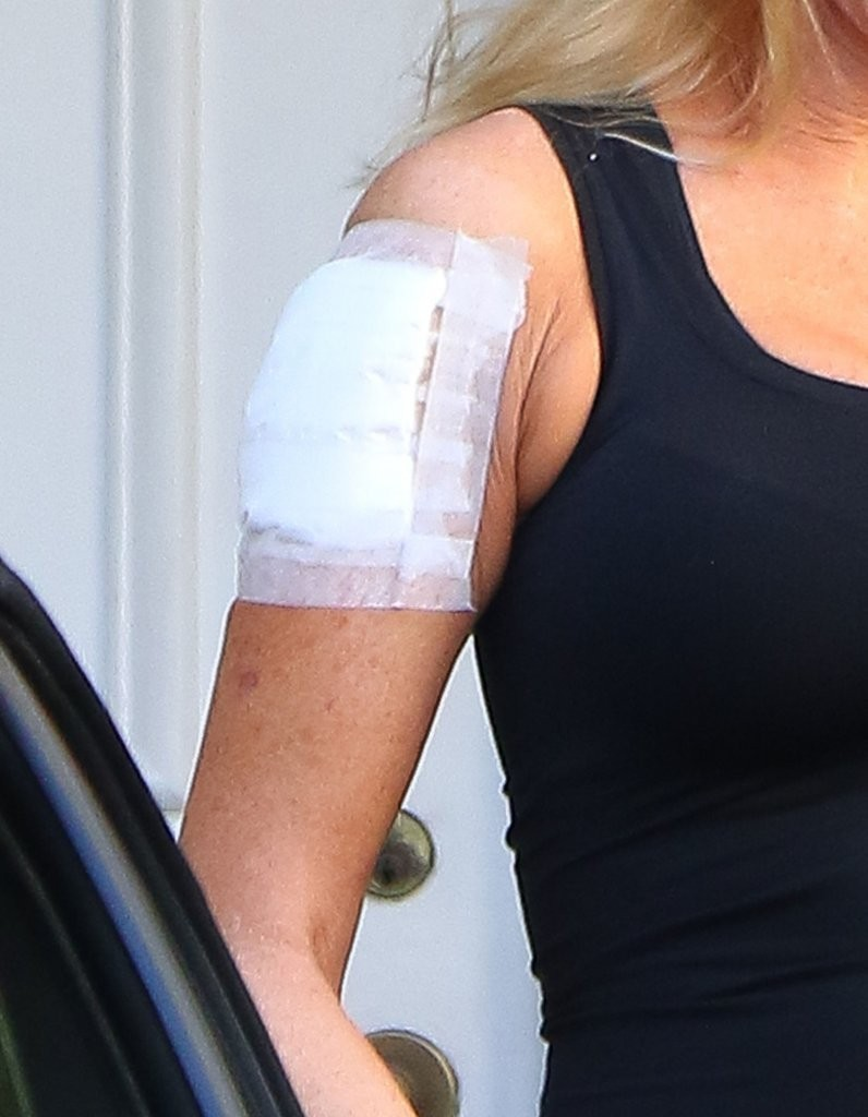 Melanie griffith in melanie griffith leaving a tattoo for Tattoo removal clinic