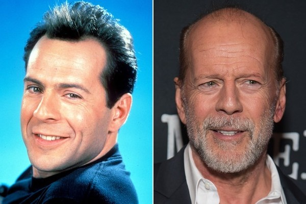 Bruce Willis - Famous Bald Celebrities When They Had Hair - Zimbio
