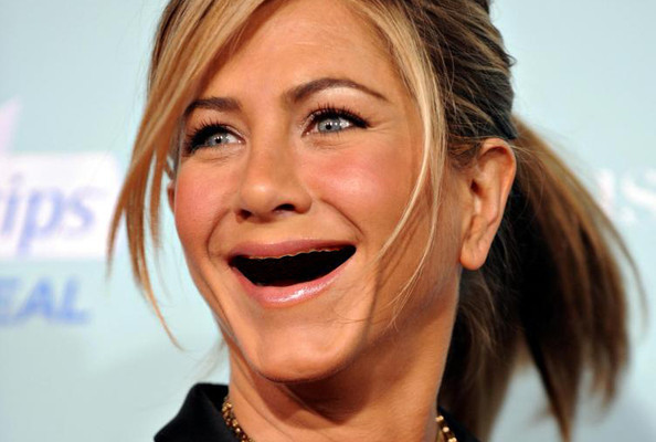 #FF - Actresses Without Teeth