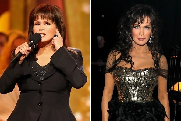 Marie Osmond Weight Loss Pictures Before And After