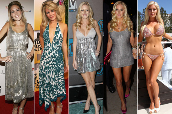 heidi montag surgery before and after. Also on Zimbio: Heidi Montag