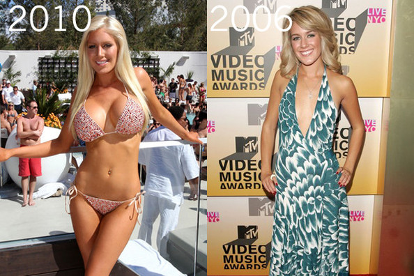 heidi montag plastic surgery cover. The Hills star Heidi Montag