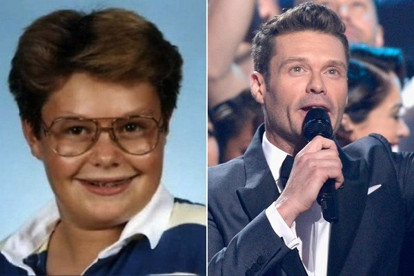 Celebrities Who Went Through Awkward Phases