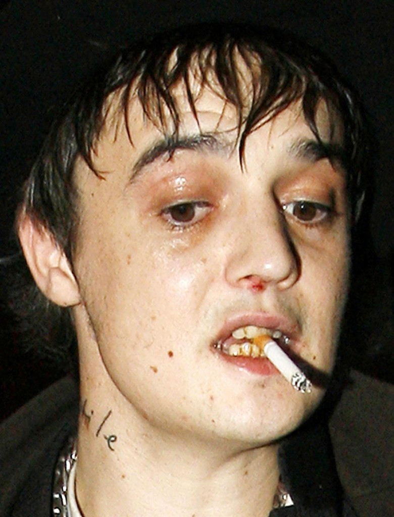Pete Doherty Photos - ***BREAKING NEWS***FILE PHOTO: Pete Doherty is jailed for six months after pleading guilty to possession of cocaine - Zimbio - BREAKING%2BNEWS%2BFILE%2BPHOTO%2BPete%2BDoherty%2Bjailed%2BoqaNhtO6zwkx