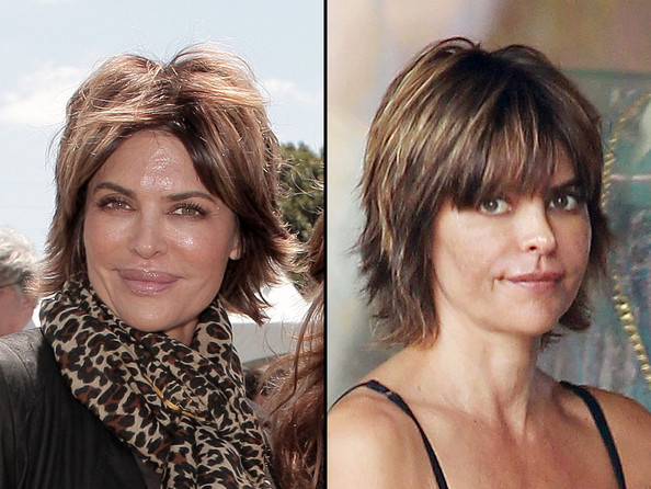Lisa Rinna Before and After Photos
